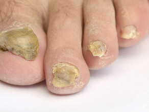Fungal Nail Infections