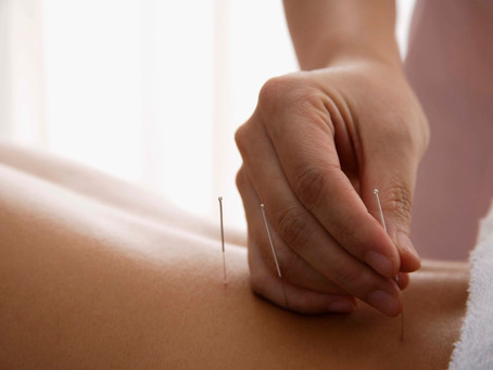 How Does Acupuncture Treat Pain?
