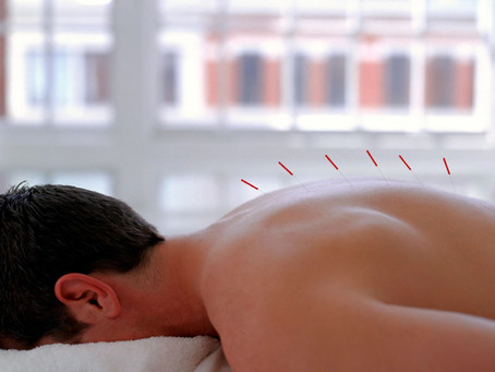 What is an acupuncture treatment like?