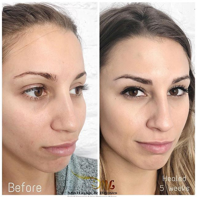 My lovely client 👩🏼_Healed result of M
