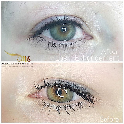 Lash Line Enhancement is one of our most