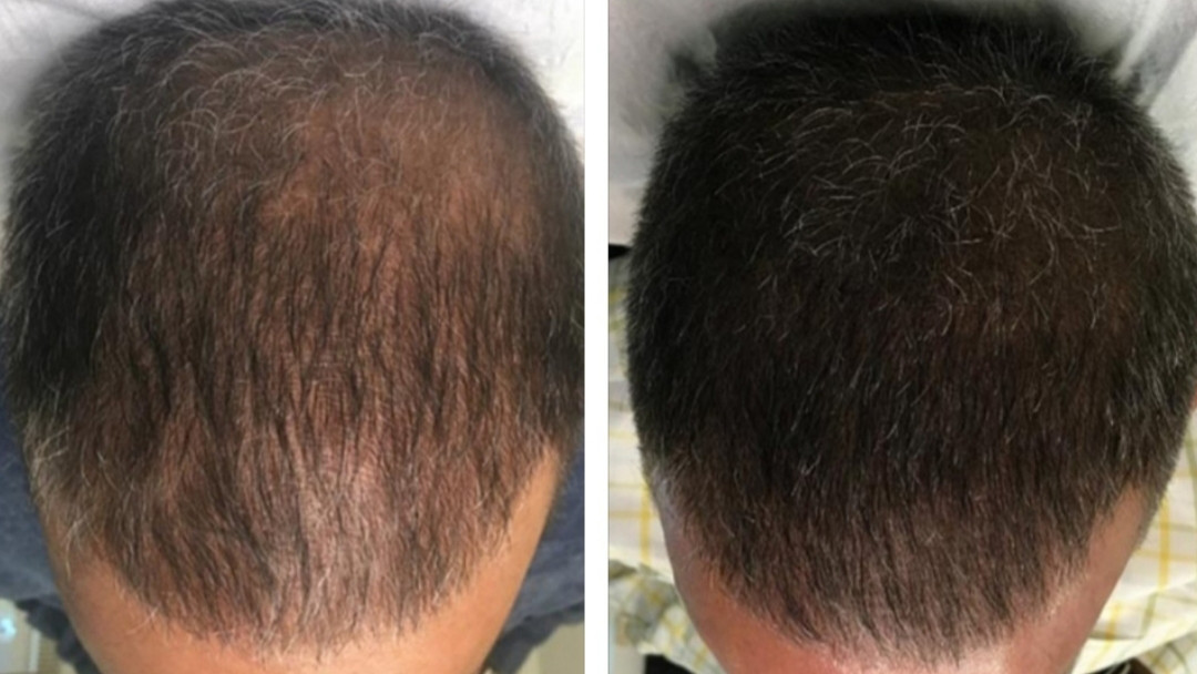 male scalp micropigmentation