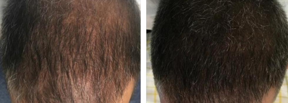 male scalp micropigmentation