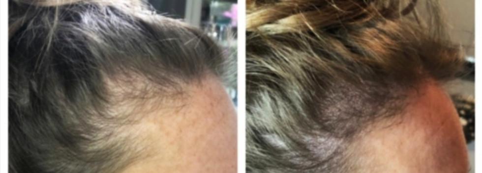 natural scalp micropigmentation