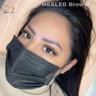 Healed powder at 5 weeks