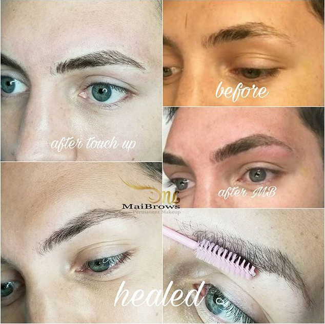 Covering scars with microblading. Client desired to cover his scars on the brows. Pictures showing before, after result and healed.