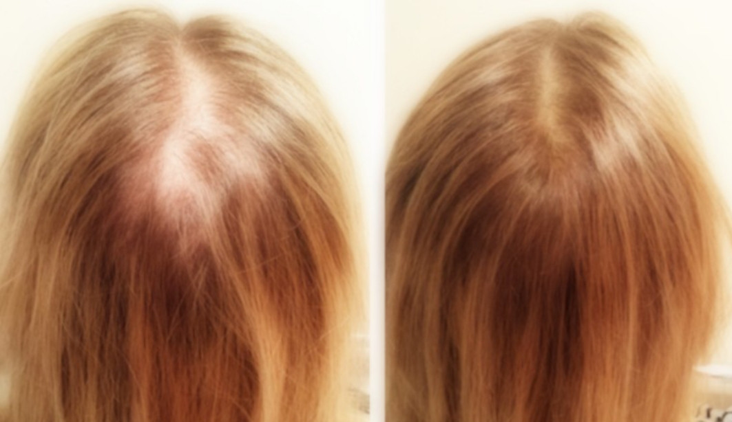 scalp micropigmentation on women