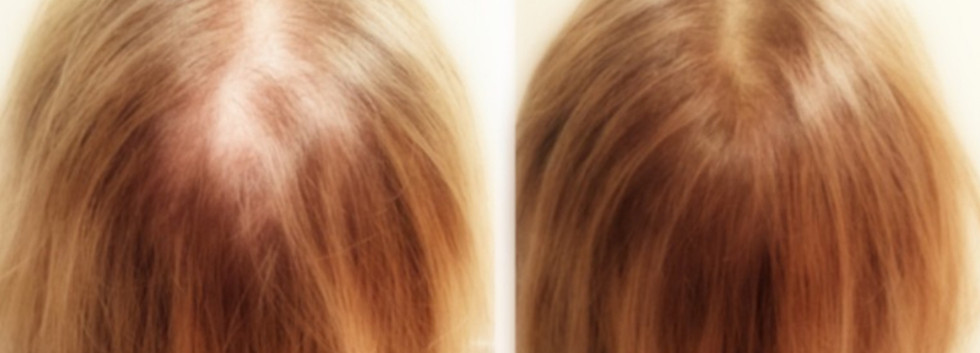 scalp micropigmentation on women
