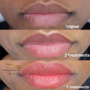 Melanin-rich lips that needed brightening treatment (more than 2 treatments)