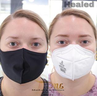 Before vs. Healed at 5 weeks