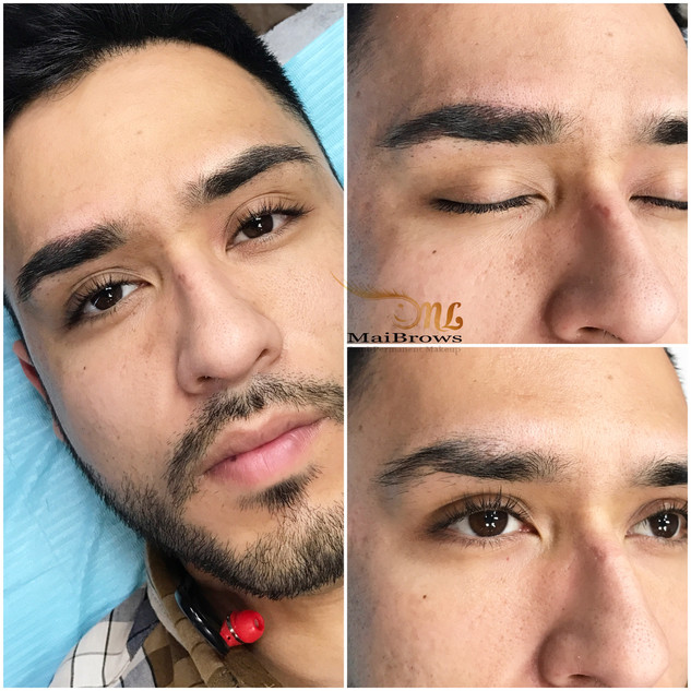Microblading to cover scars. Client desires to cover his scars on the brows while still keeping it natural and true to shape
