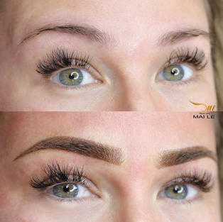 Before and just done. Little brow hair case. Watch Healed video.