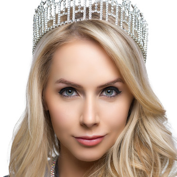 Miss Arizona desired to achieve a high arch as natural look as possible.