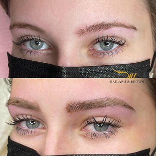 Before and Just Done. Brows naturally has good hair, missing the arch and  front is patchy .