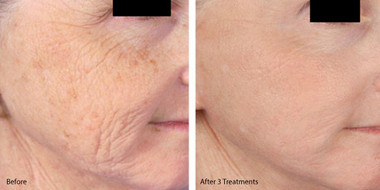 microneedling-with-prp-before-and-after.