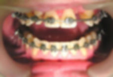 Завершающий этап ортодонтического лечения