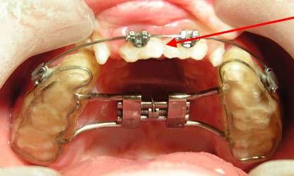 Выравнивания зубного ряда
