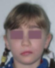 Синдром Ван дер Вуда: фото до и после