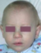 Заячья губа: фото до и после