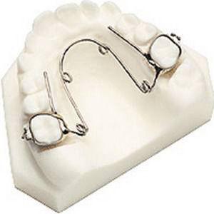 Несъемные ортодонтические аппараты