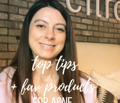 top tips and favorite products for acne