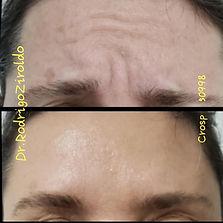 Botox AD - 2.jpeg