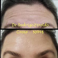 Botox AD - 1.jpeg