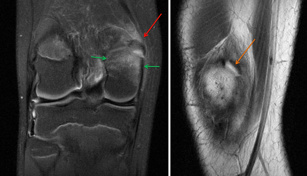 MRI of Avulsion Fracture of the Medial Head of the Gastrocnemius Muscle