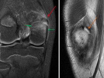Avulsion Fracture of the Medial Head of the Gastrocnemius Muscle