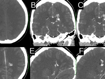 Cerebral AVM