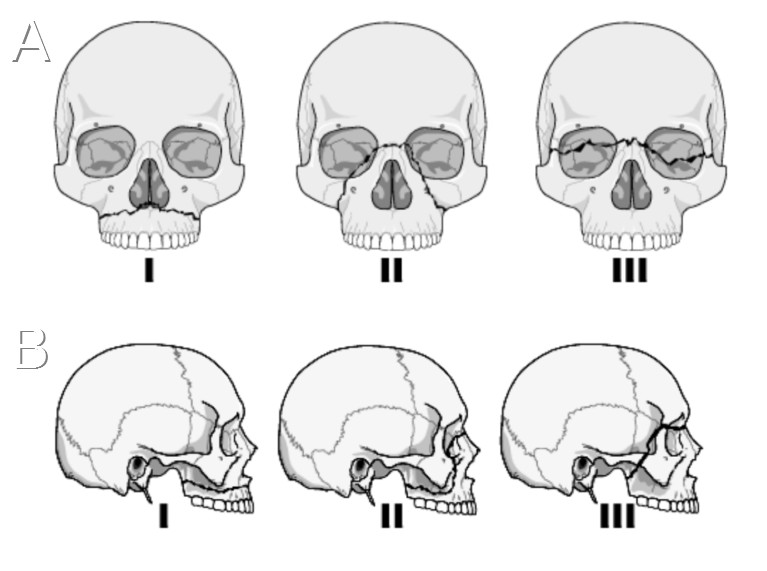 Diagram of Lefort fractures.