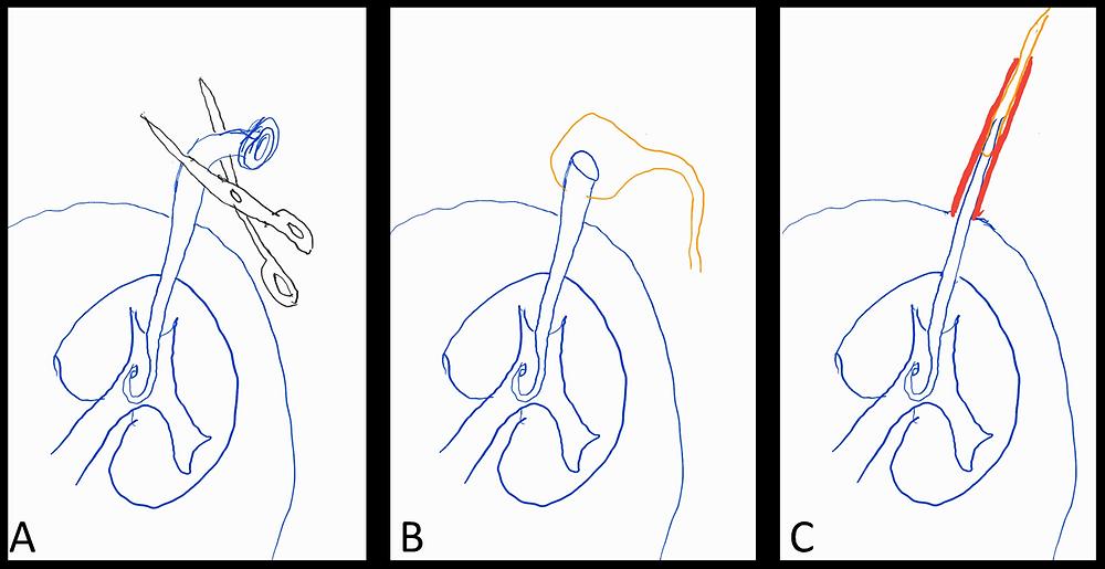 Blocked Nephrostomy Exchange Instuctions