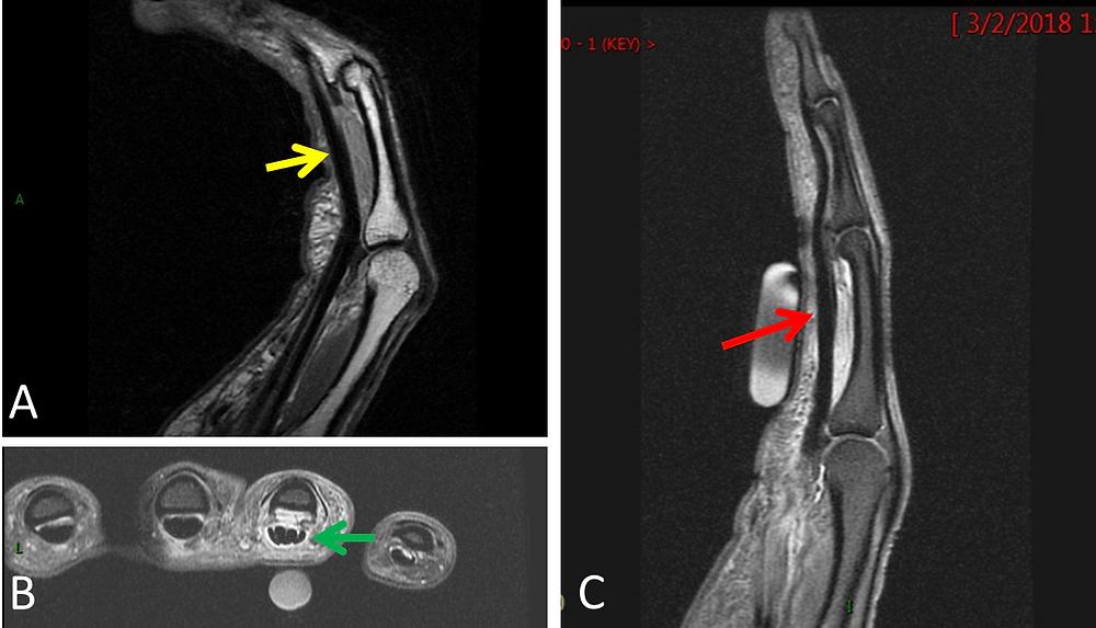 Tear of the Flexor Pulley of the Finger MRI
