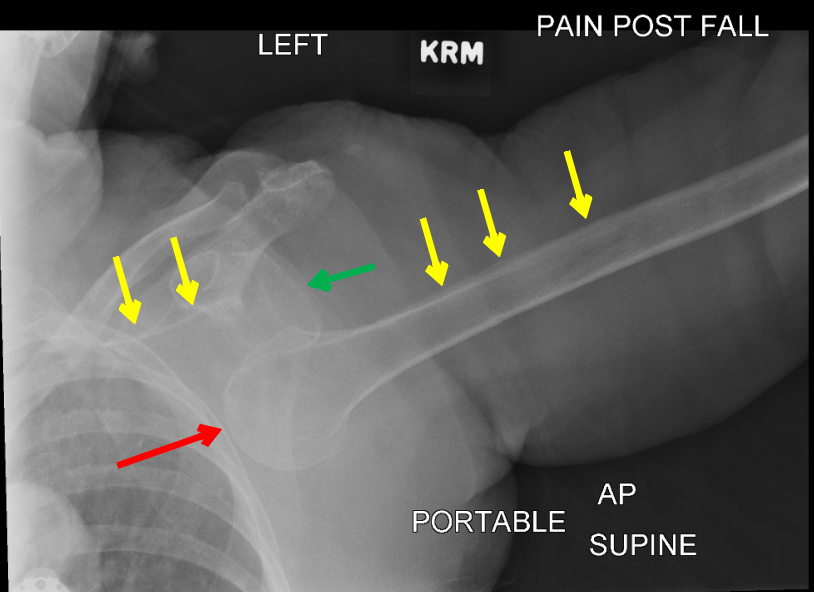 Annotated Xray of Inferior Shoulder Dislocation with Luxatio Erecta