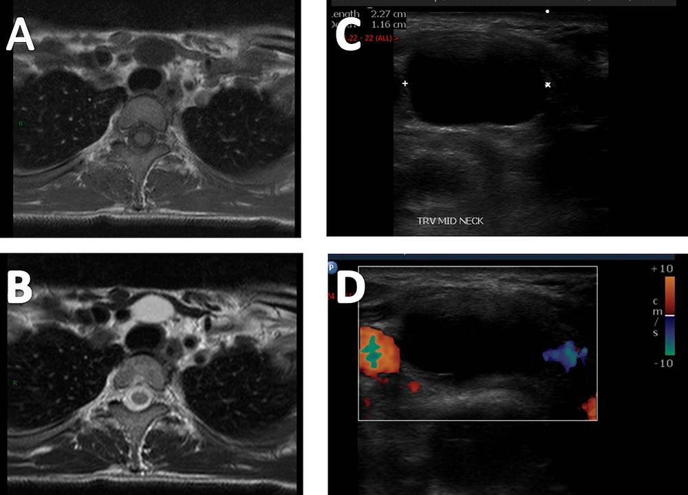 Thyroglossal duct cyst MRI and Ultrasound