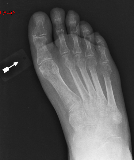 Helpful metal pointer on foot xray with subtle fracture