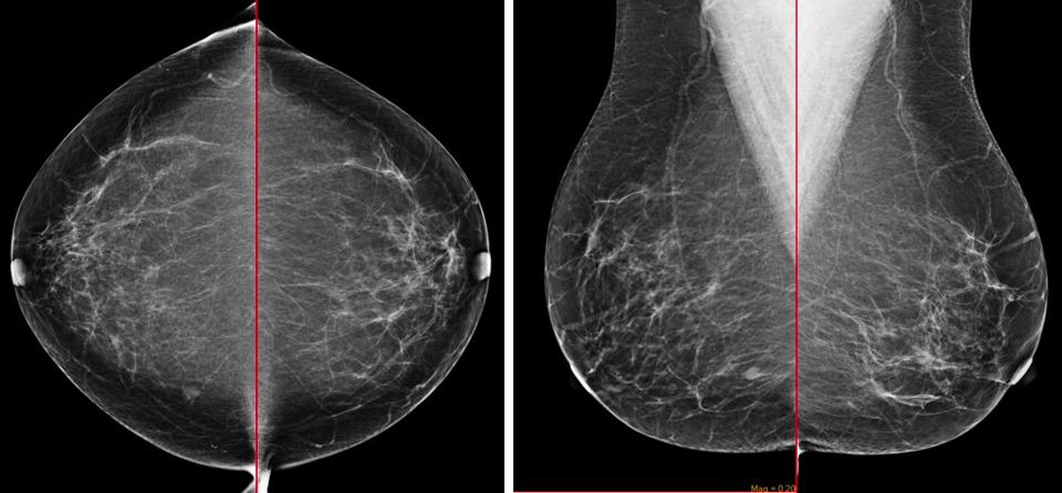 Medullary Breast Cancer mammogram