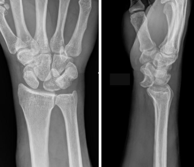 Xray of Lunate Dislocation