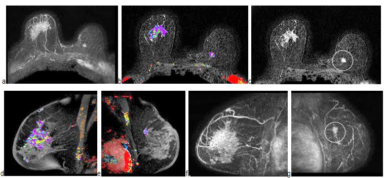 Bilateral Breast Cancer MRI
