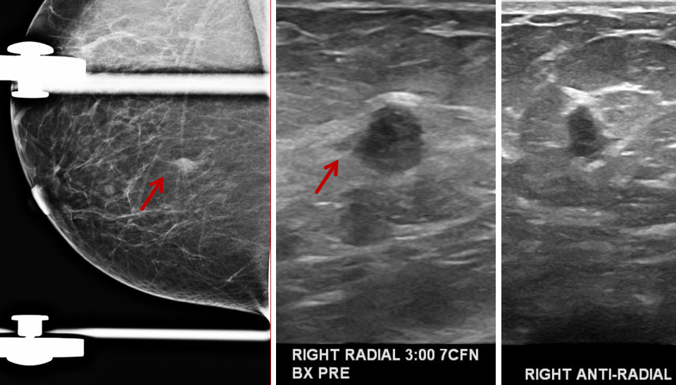 Medullary Breast Cancer mammogram and Ultrasound 2