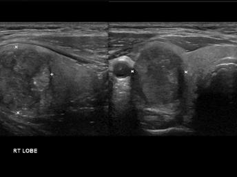 TI-RADS 5 • Thyroid Papillary Cancer
