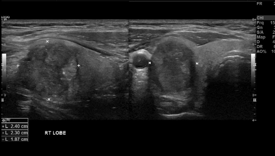 Thyroid Papillary Cancer