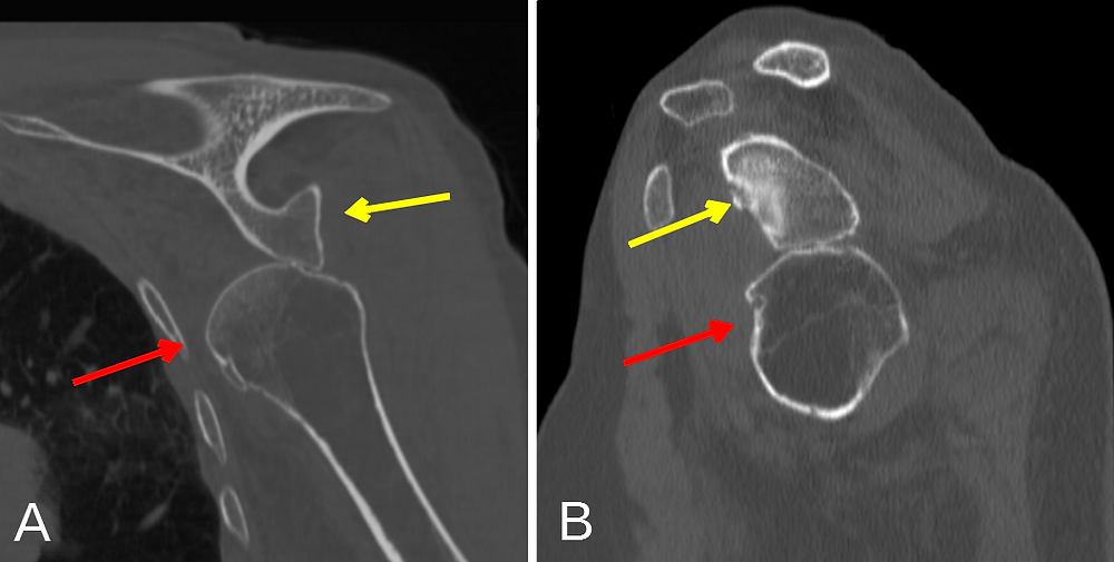 Annotated Inferior Shoulder Dislocation with Luxatio Erecta CT Scan