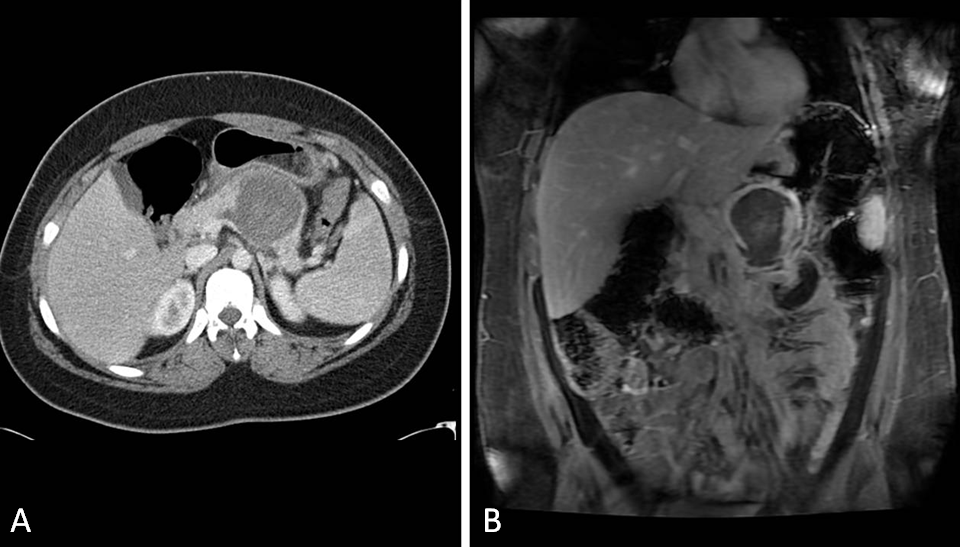 Solid Pseudopapillary Tumor of the Pancreas CT and MRI Scan