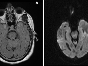 Cerebral Autosomal Dominant Arteriopathy with Subcortical Infarcts and Leukoencephalopathy (CADASIL)