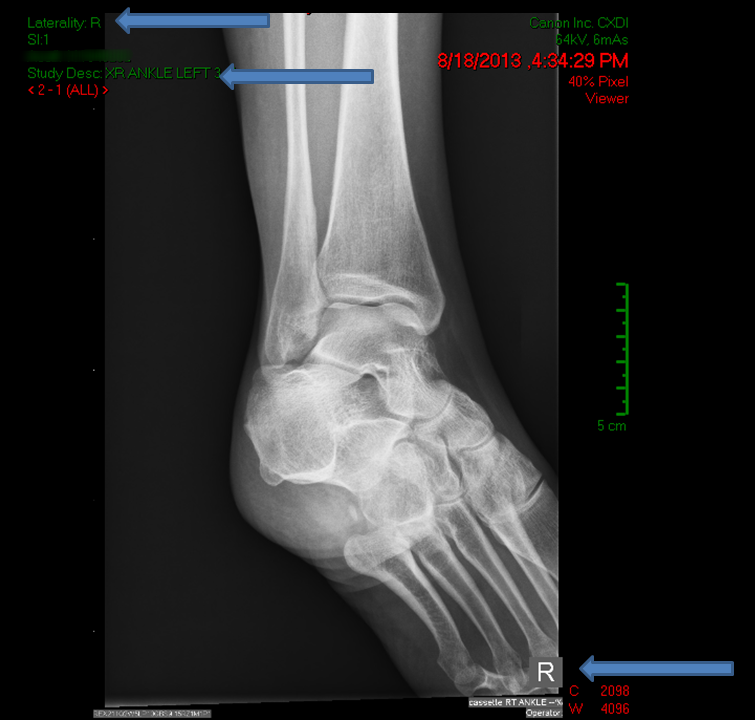 Ankle xray with ambiguous side marker