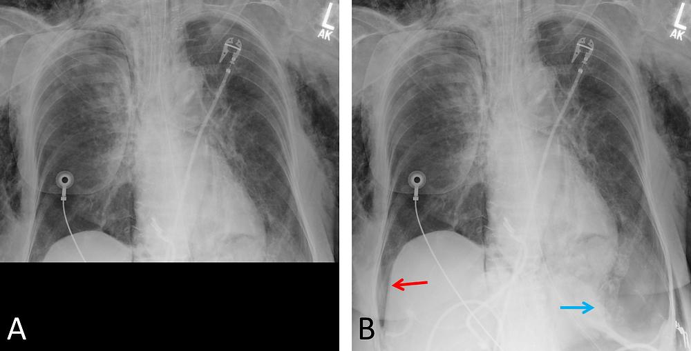 Pneumothorax Deep Sulcus Sign Quality