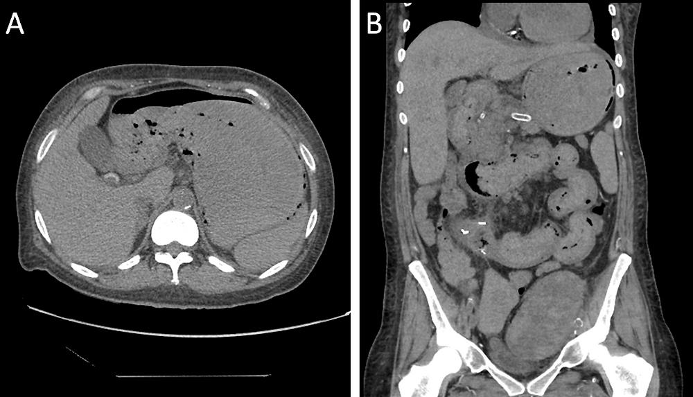 Emphysematous Gastritis CT Scan