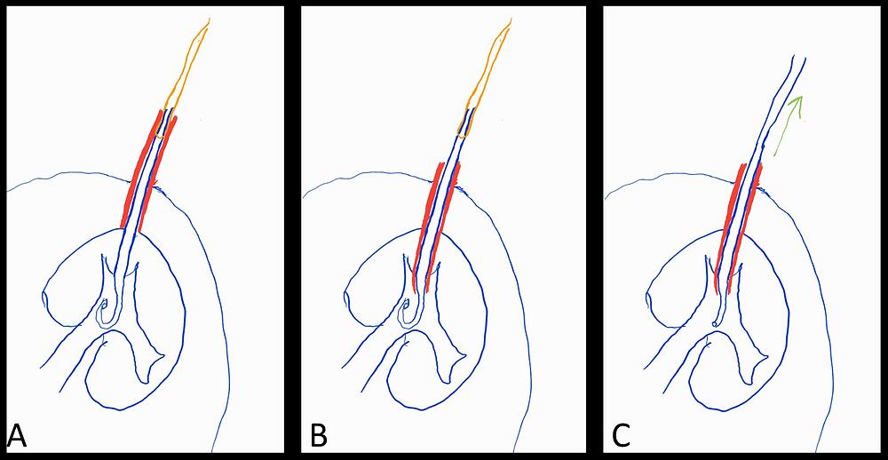 Blocked Nephrostomy Exchange Instructions
