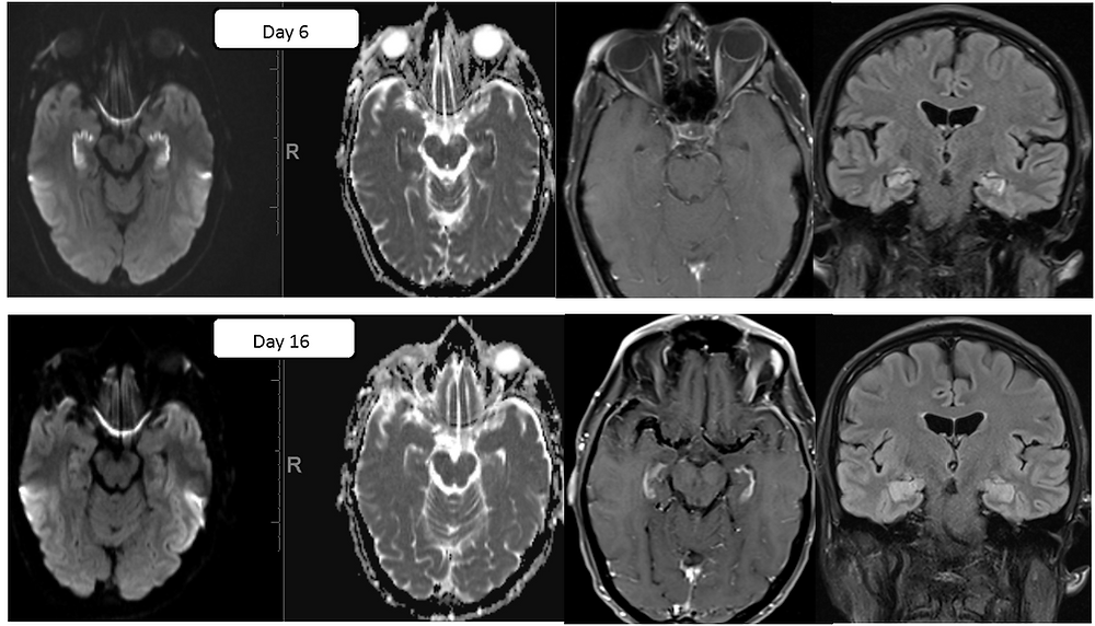 MRI of Bilateral Hippocampal Infarction